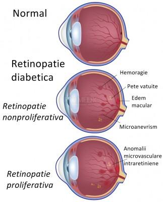 vedere după retinopatie)